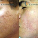 Hình ảnh trước và sau khi trị sẹo