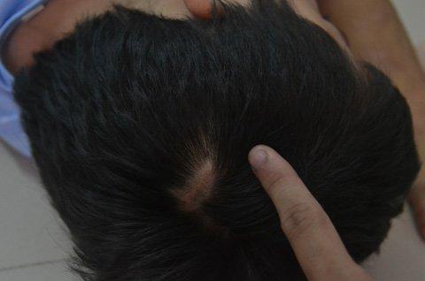 Sẹo trên đầu có chữa được không?1