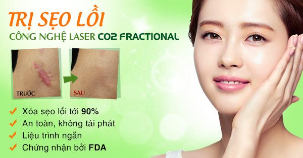 Điều trị sẹo lồi hiệu quả tới 95% các loại sẹo lồi8899