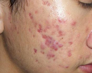 Sẹo lõm trên mặt thường là do hậu quả của mụn trứng cá để lại