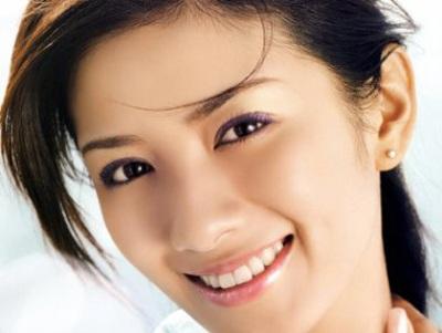 Giải pháp điều trị sẹo lõm lâu năm hiệu quả nhất1