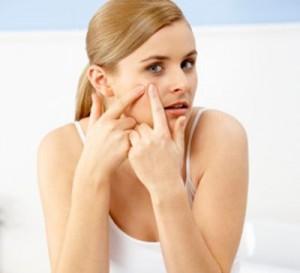 Cách phòng tránh để da mụn không để lại sẹo