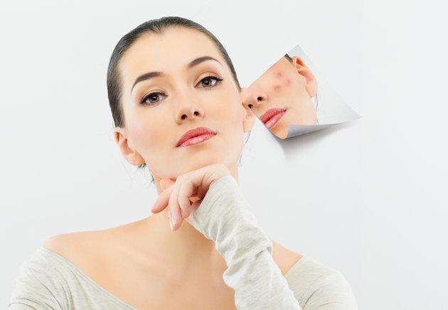 Mách bạn cách phòng ngừa và trị sẹo tại nhà 1