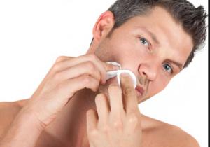 Cách trị sẹo lõm lâu năm hiệu quả nhất?