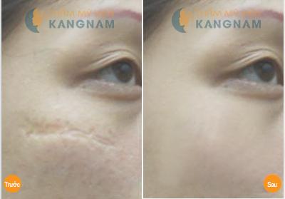 Làm sạch vùng da bị sẹo trước khi bôi kem 1