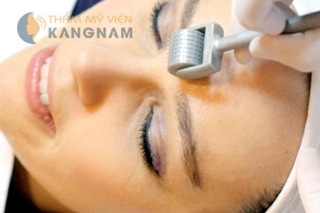 Bật mí cách trị sẹo mụn hiệu quả tại nhà 4