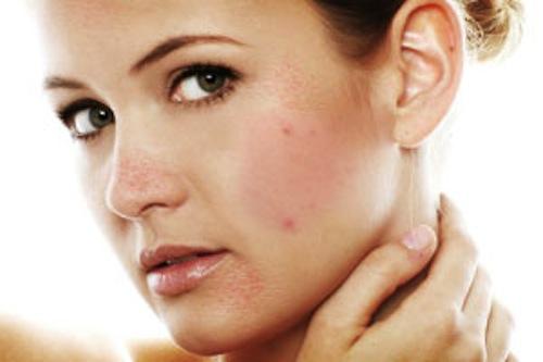 Giải pháp nào trị sẹo lõm nhanh chóng và an toàn? 4