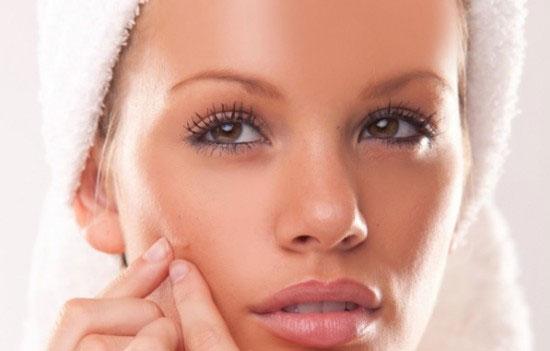 Những lưu ý để phòng tránh sẹo lõm hiệu quả 2
