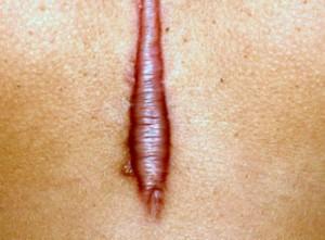 Sẹo lồi tái phát sau phẫu thuật nên điều trị như thế nào hiệu quả nhất?