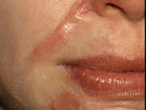Một lần điều trị sẹo lồi mất khoảng bao lâu?