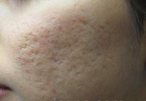 Bị sẹo lõm do điều trị tàn nhang không đúng cách, phải làm sao?