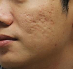 Có giải pháp nào điều trị sẹo lõm an toàn cho da nhạy cảm?