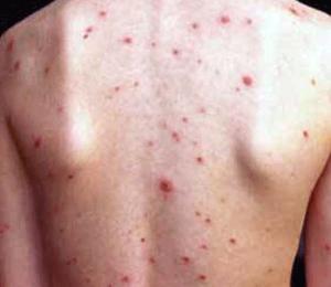 Có cách nào trị sẹo mụn ở lưng cho kết quả triệt để không?