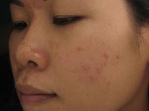 Tư vấn giúp mình cách trị sẹo thâm ở mặt do bị thủy đậu