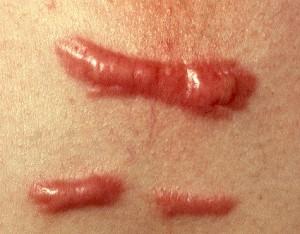 Sau trị sẹo lồi có cần phải tránh nắng không?