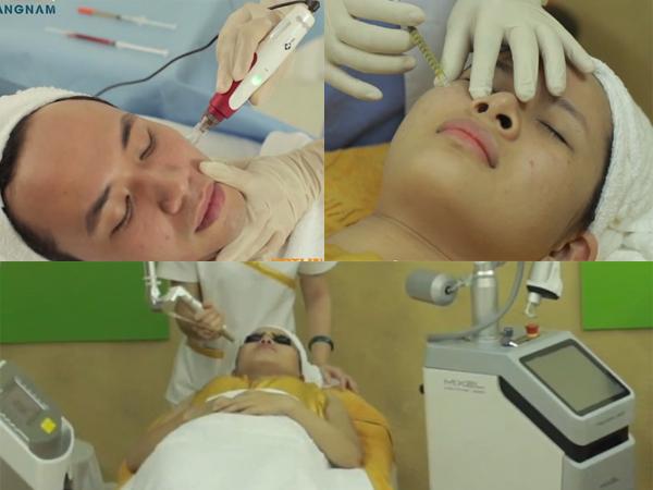 điều trị sẹo lõm5