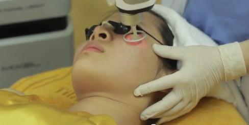 Khám phá phương pháp trị sẹo lõm hiệu quả 20154