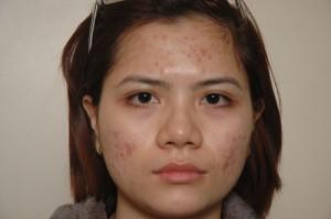 Phương pháp điều trị sẹo lõm hiệu quả đến 95%