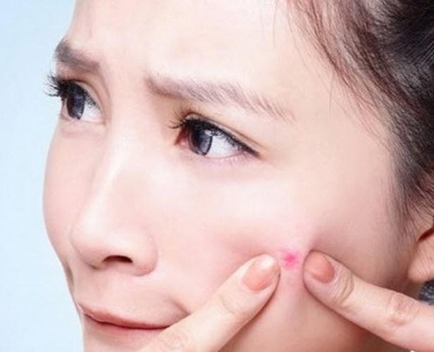 Giải pháp trị sẹo sau mụn an toàn 2
