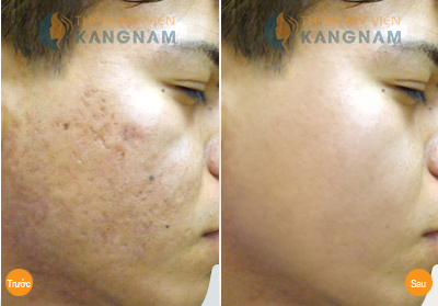 Mẹo chữa sẹo lõm trên mặt bằng chanh8