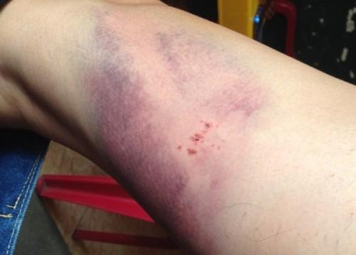 """""""Xóa sổ"""" sẹo thâm với cách trị sẹo ở chân cực hiệu quả 12"""