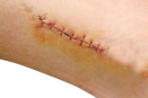 """""""Bật mí"""" phương pháp chữa sẹo lồi hiệu quả nhất hiện nay 8"""