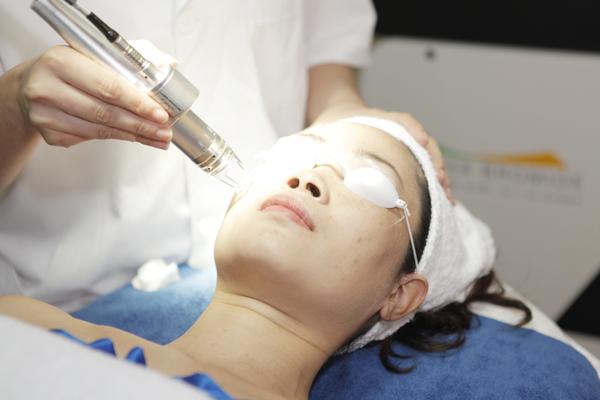 Cách trị sẹo lâu năm trên mặt hiệu quả bằng công nghệ cao