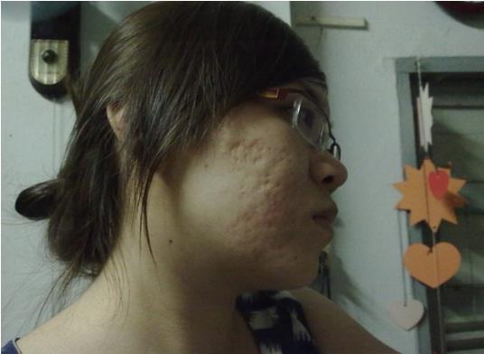 Làm sao để xóa sẹo lõm trên mặt nhanh chóng?1