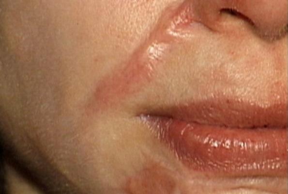 Phẫu thuật xóa sẹo lồi - giải pháp cứu cánh cho da sẹo lồi1
