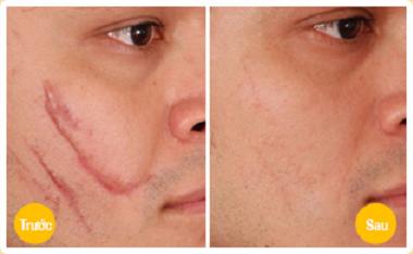 Sẹo lồi có tái phát trở lại sau phẫu thuật xóa sẹo? 4