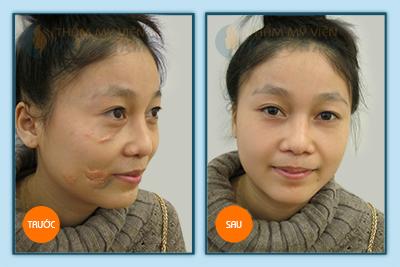 Cách trị sẹo lồi ở môi tại Thẩm mỹ viện Kangnam5