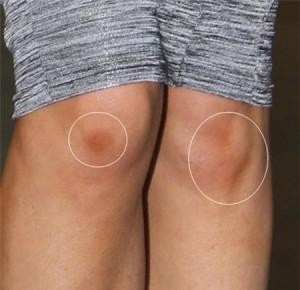 """Bí kíp trị sẹo thâm lâu năm ở chân """"cực"""" hiệu quả"""