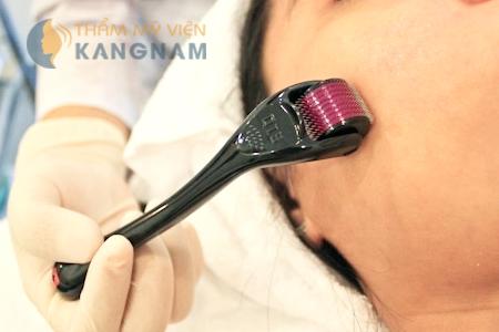 Đâu là cách trị sẹo mụn hiệu quả nhất hiện nay?2