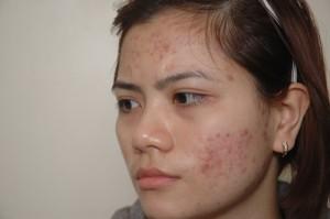 6 cách trị sẹo mụn trên mặt bằng mật ong vô cùng hiệu quả