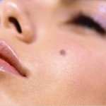 Cách chăm sóc da để phòng ngừa sẹo lõm sau tẩy nốt ruồi