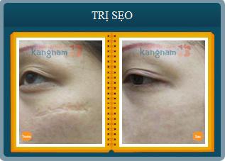 Hình ảnh trước và sau khi chữa trị sẹo