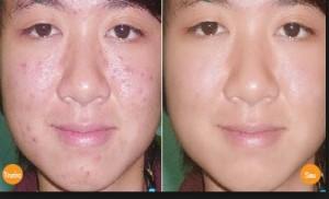 mặt nạ trị sẹo thâm sau mụn666