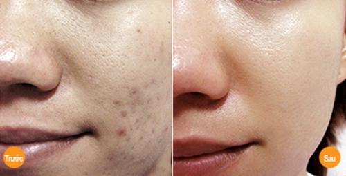 mặt nạ trị sẹo thâm sau mụn445