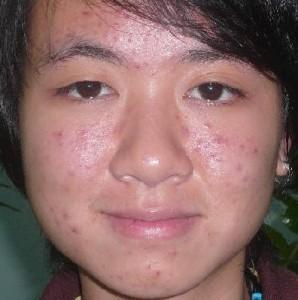 mặt nạ trị sẹo thâm sau mụn111