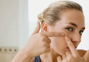 Trị sẹo mụn hiệu quả không cần tới mỹ phẩm