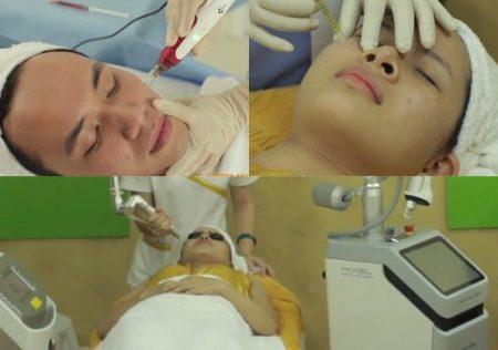 Phương pháp trị sẹo rỗ lâu năm hiệu quả nhất 2017