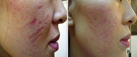 Phương pháp trị sẹo lõm 2