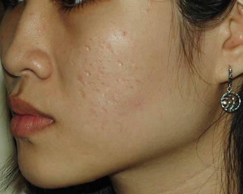Những cách trị sẹo lõm hiệu quả tại nhà bạn lên biết.