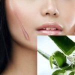 TOP 3 cách chữa sẹo lồi mới hình thành hiệu quả nhất