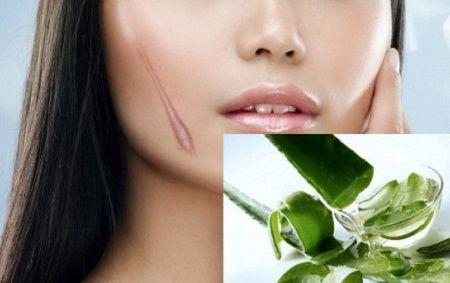 3 cách chữa sẹo lồi mới hình thành4