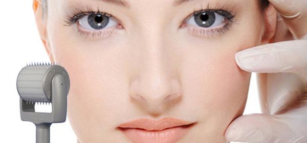 70% khách hàng gặp hậu quả khôn lường vì trị sẹo lõm bằng lăn kim kém hiệu quả.