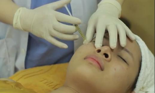 Điều trị sẹo bằng công nghệ tế bào gốc tự thân