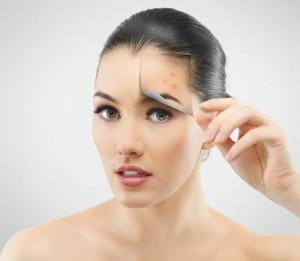 Cách chữa sẹo lõm trên mặt tại nhà 1