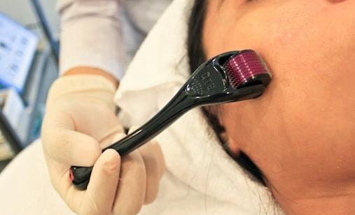 Cách trị sẹo mụn hiệu quả nhất3
