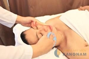 Phương pháp trị sẹo mụn tốt nhất hiện nay?